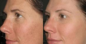 Hyperpigmention Rapid Repair