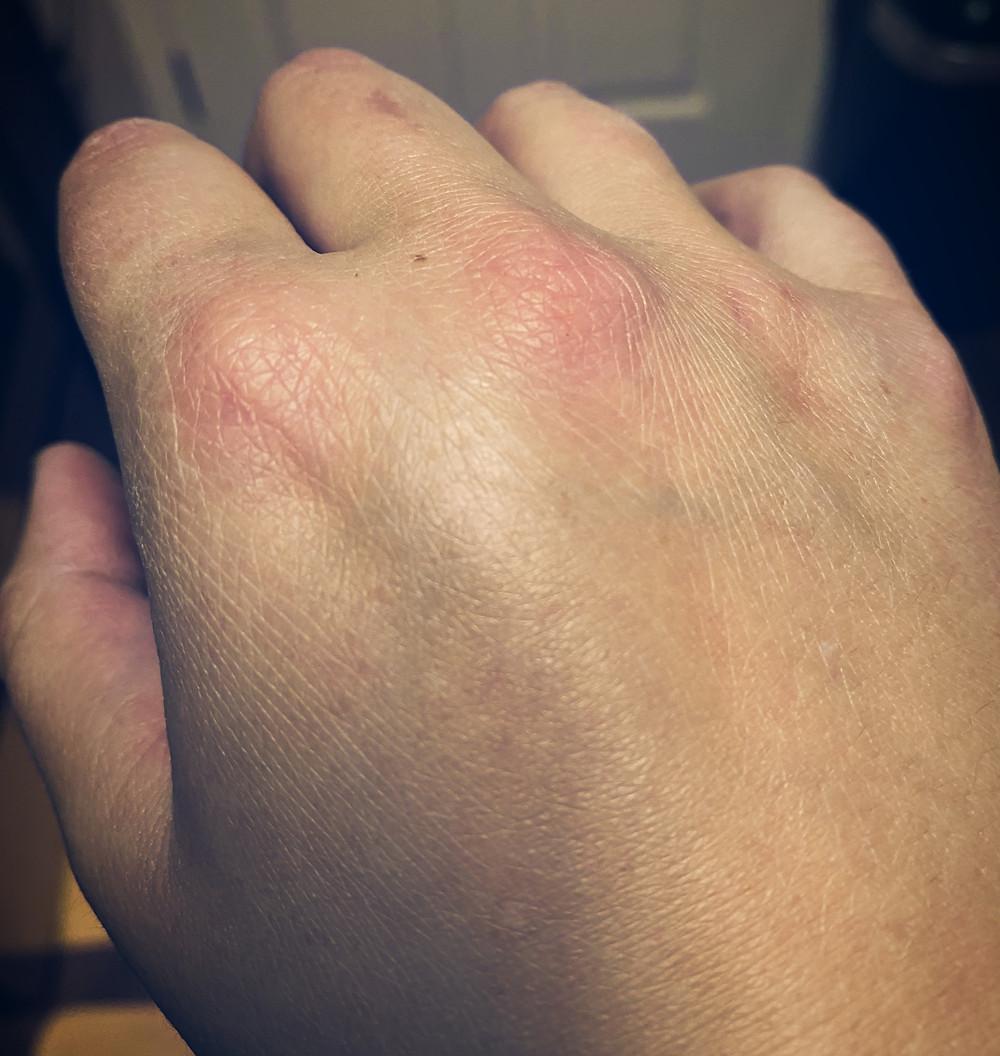 Hand inflammation from Ankylosing Spondylitis