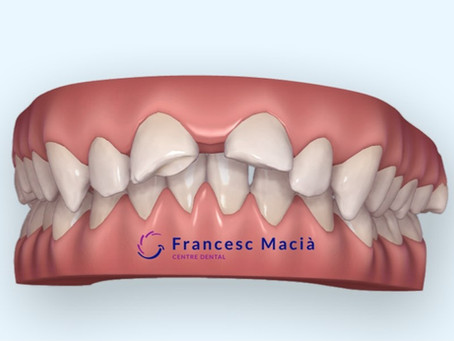¿Qué hacer frente a una fractura dental?