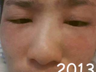 嚴重濕疹從食生創造轉化