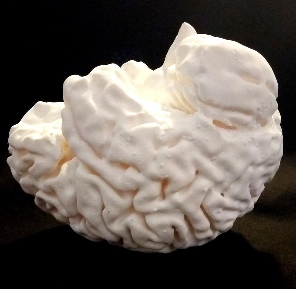 modello di cervello da file tac stampato in 3D