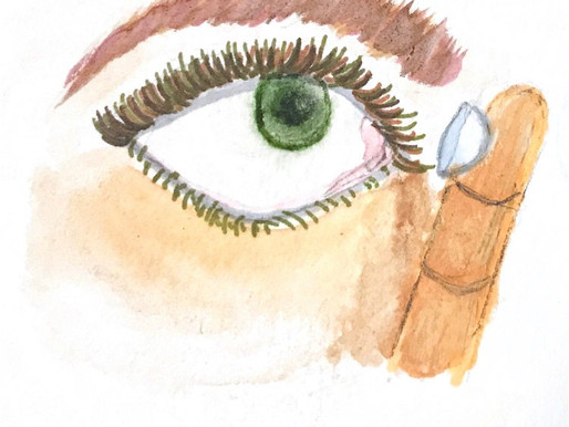 History of Contact Lenses