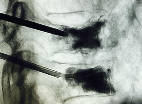 Perioperative Management for Vertebral Augmentation Procedures
