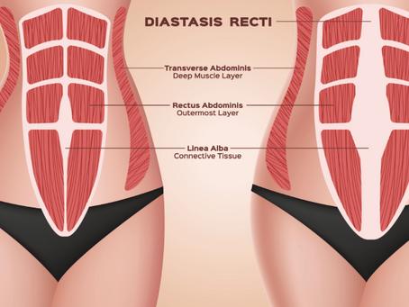 How Do I Prevent Diastasis Recti?