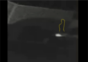 a snapshot from the video this object appeared to move in and out of the car.
