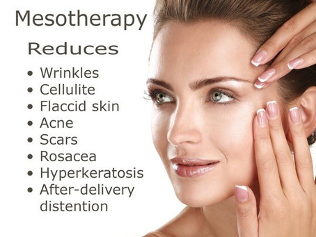 The 5 Benefits of Mesotherapy