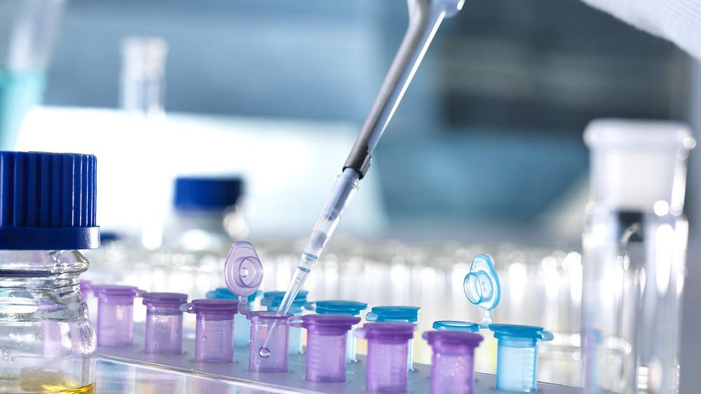 Celiac Disease tests The GF Hub