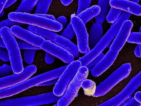 """Turning Genes """"On and Off:"""" Polycistronic Operons in Bacteria"""