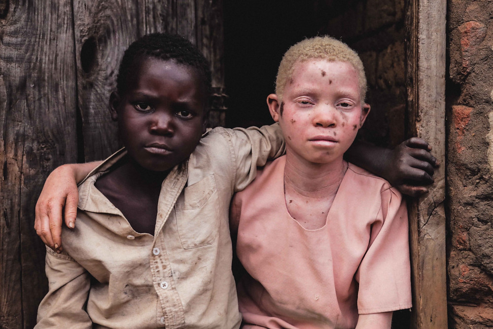Persecution of Albinism in Malawi photo by Lior Sperandeo