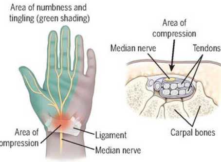 Carpal Tunnel: Risks, Symptoms, Tips, & Treatments