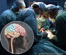 Brain Surgery in The Way of Things