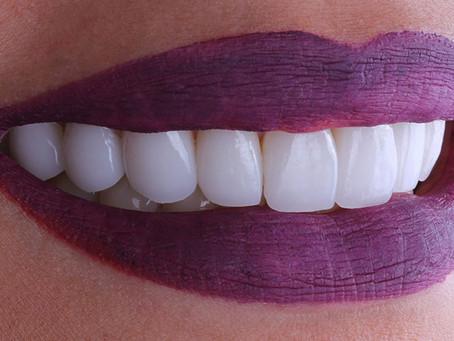 Carillas dentales o Diseño de Sonrisa