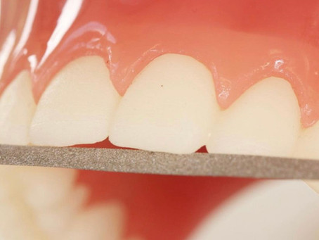 Farlig TikTok-trend #teethfiling