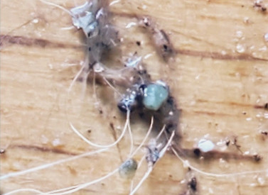 Tracking The Morgellons Fiber Parasites & How To Treat Them
