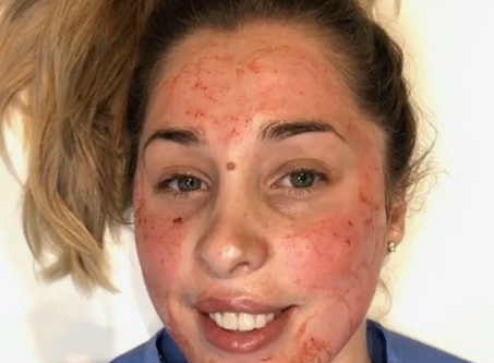 Everything to Know: Microneedling with PRP