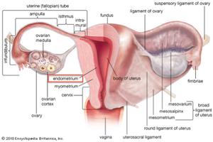 Nyeri haid dan Endometriosis