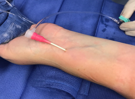 Radial Access 101 with Dr. Aaron Fischman
