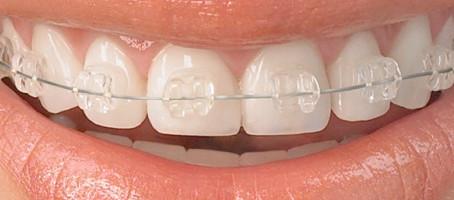 Todo lo que necesitas saber del tratamiento de ortodoncia
