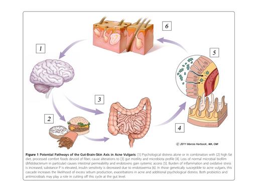 Una solución natural para el acné puede ser tu plato de comida