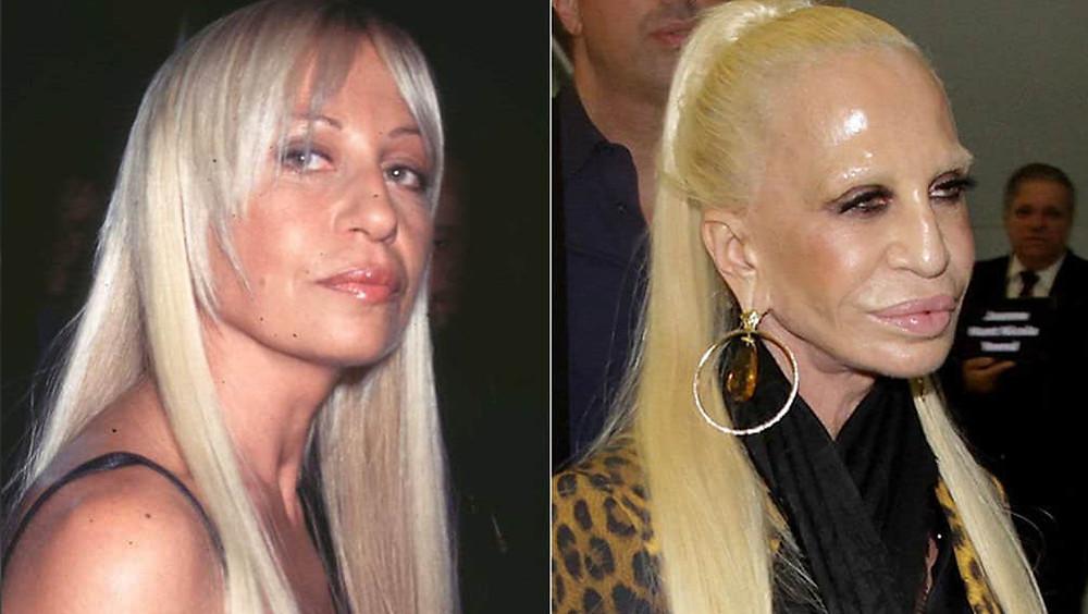 Donatella Versace, antes y después.