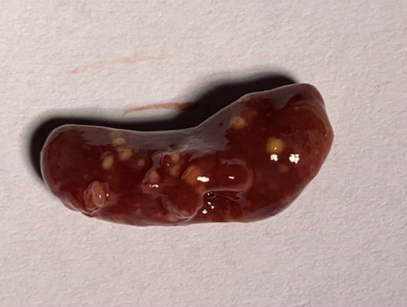 Milt vergroot met verschillende gele granulomen.