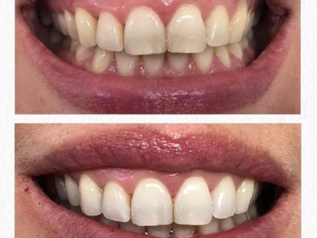 Dreaming of a whiter, brighter smile?