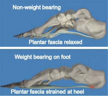 Excessive weightbearing on foot with poor support can strain and injure the plantar fascia
