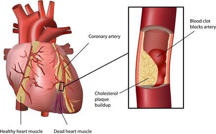 High Cholesterol và căn bệnh Đột Quỵ