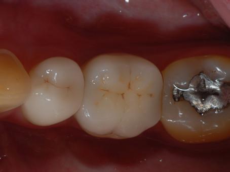 下の奥歯のインプラント治療