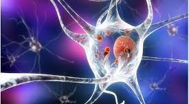 Predicting Neurodegenerative diseases: Parkinson's disease case