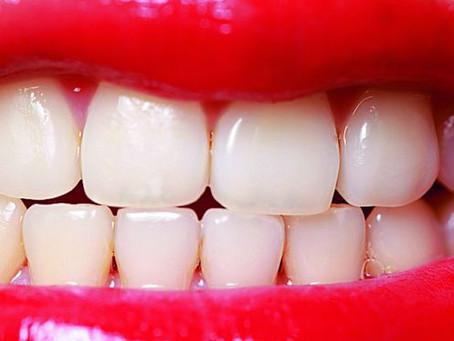 ¿Dientes amarillos? solución,      ¿Por qué amarillean los dientes?