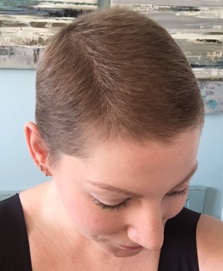 Guest Blog   Tips for Post-Chemo Hair Growth