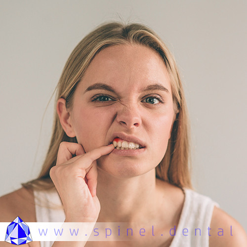 Bleeding Gum, Tender or Inflated spots in mouth