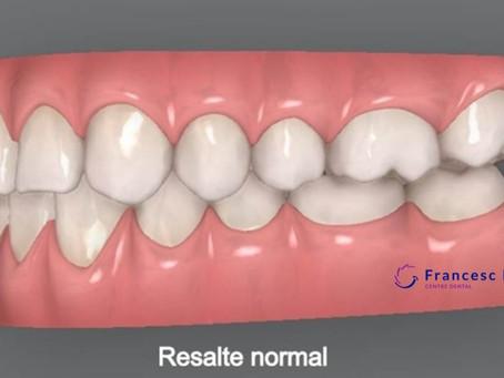 ¿Qué es el resalte dental?