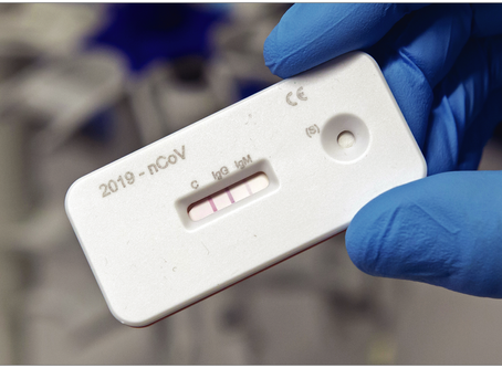 COVID-19 Antibody Testing—Now Available