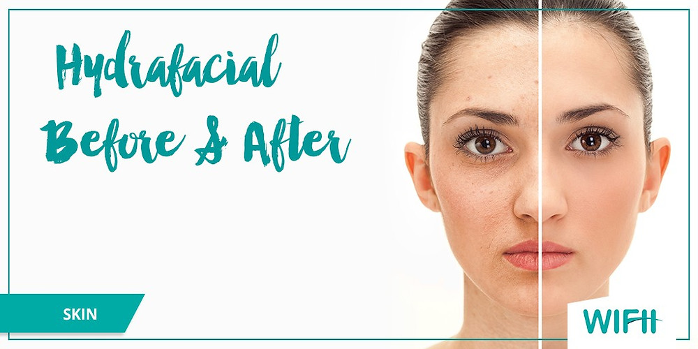 HydraFacial Grand Rapids Skin Envy Non Surgical Weightloss