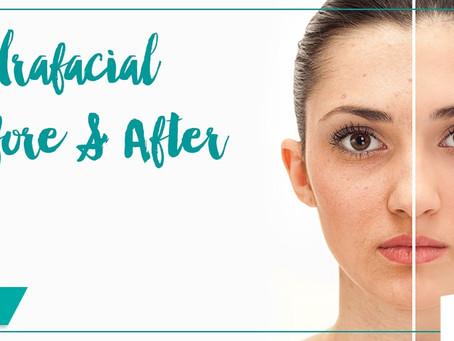 HydraFacial: The Holy Grail of Facials?