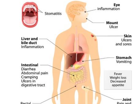 Cannabis Treatment for Crohn's Disease