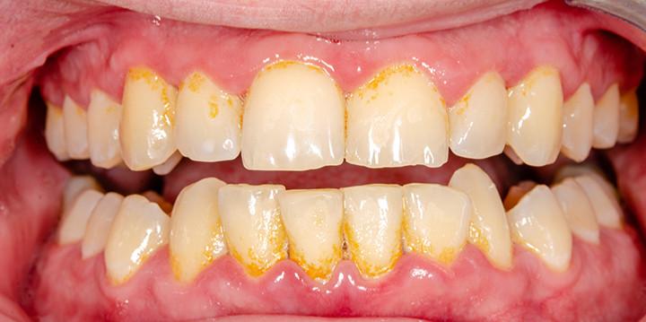 Limpieza dental en Monterrey dentalMedics