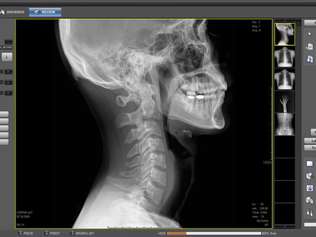 Brand New Naomi Digital Xrays on premises now.