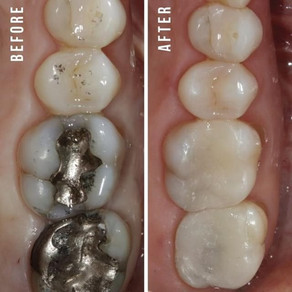 Restorative Dentistry: Preservation At It's Finest...