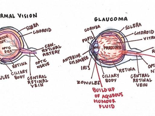 Glaucoma in Children