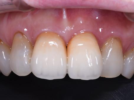 上の前歯のインプラントとセラミック