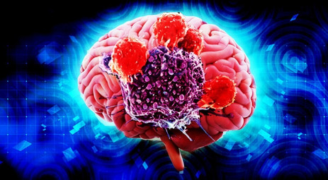 Scientists find genes that help cancer cells to penetrate brain