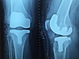 Ostéopathe du Sport 44 | Ostéopathe Saint-Nazaire | Cédric de TOMBEUR