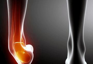 Distorsione di caviglia - Cosa fare? #fisioconsiglio