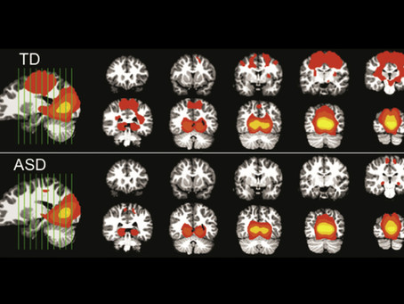 Scans during sleep spotlight early brain asynchrony in autism
