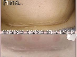 """La cicatrice """"accantonata"""" di Mamma Roberta"""