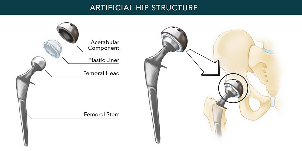 Hip implant and its components - illustration