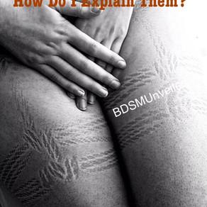 BDSM Bites and Bruises - How Do I Explain Them?